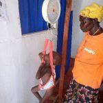 4y/o child with malnutrition